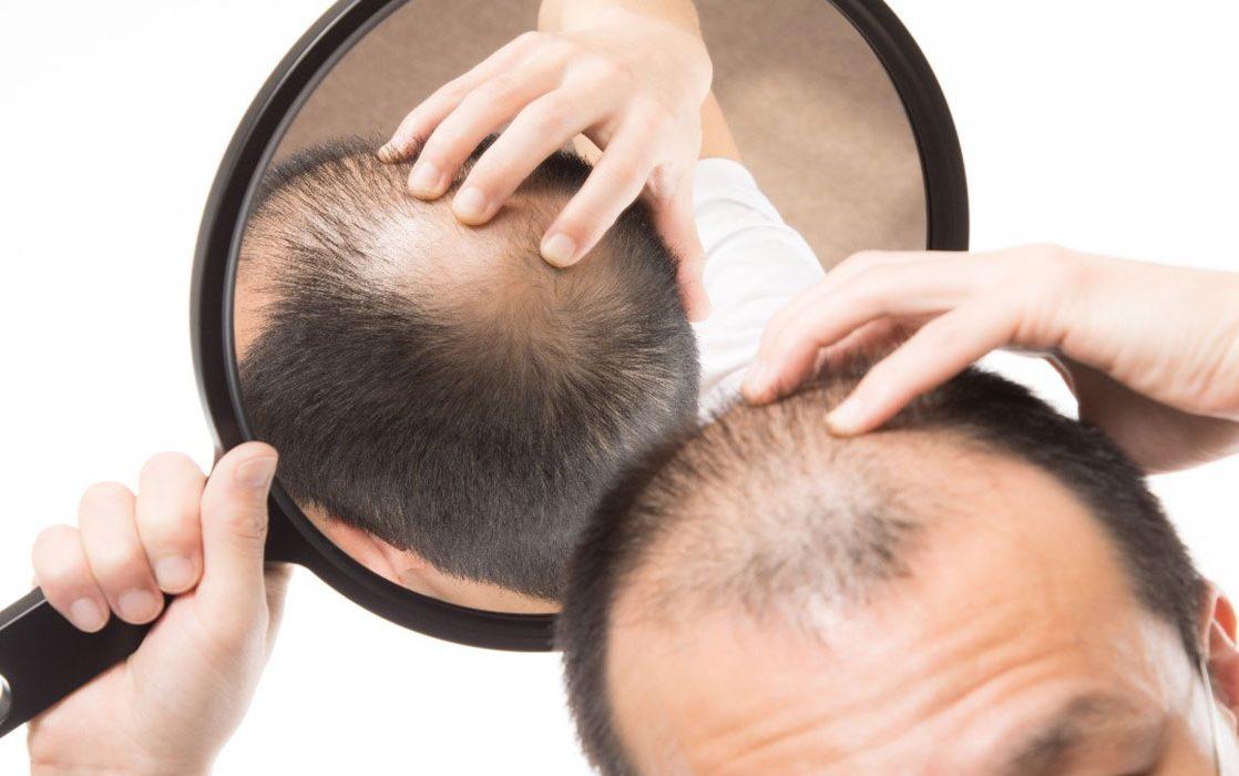افضل بخاخ لتساقط الشعر الوراثي وعلاج فراغات الشعر /متألقة